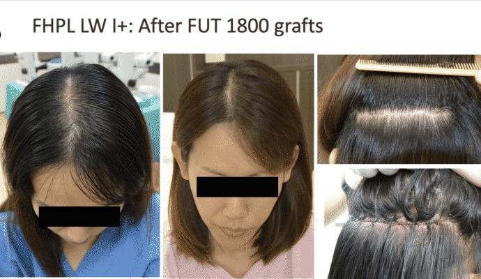 FUT hair transplant Bangkok