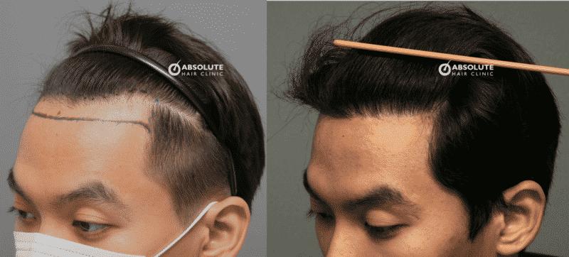 ปลูกผม FUT hair transplant Thailand