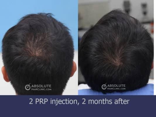 เกล็ดเลือดเข้มข้น ผมบาง PRP injection hair loss Bangkok Thailand Absolute Hair Clinic