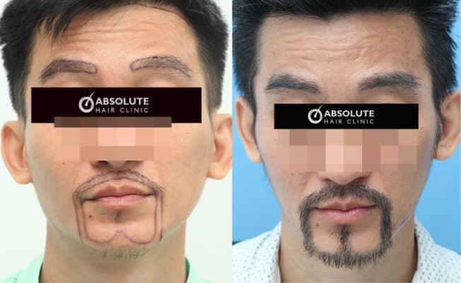 ปลูกหนวดเครา beard hair transplant Thailand