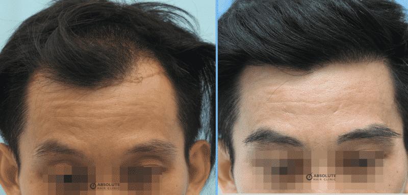 ปลูกคิ้ว eyebrows hair transplant Thailand Absolute Hair Clinic