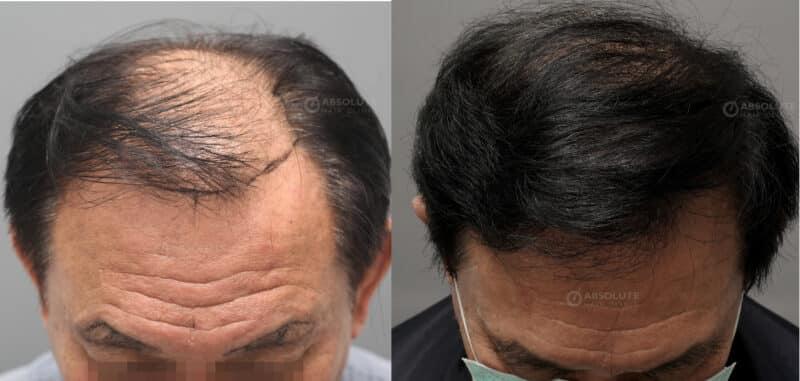ปลูกผมแผลเย็บ FUT hair transplant Thailand