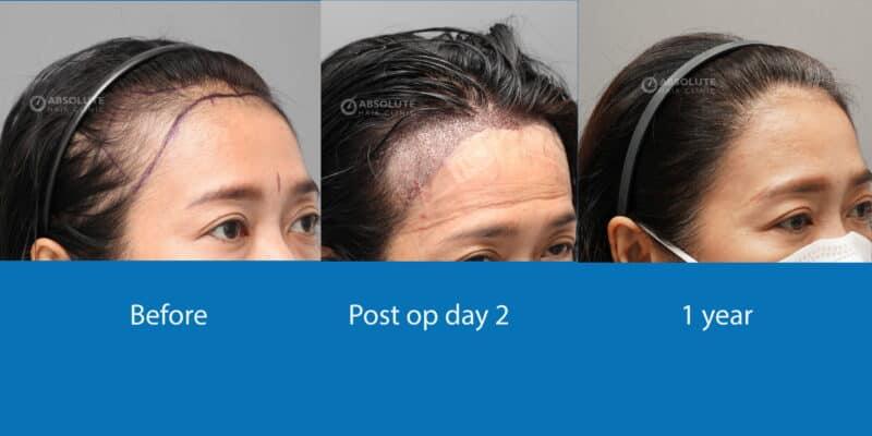 ปลูกผม FUE hair transplant Thailand Absolute hair clinic