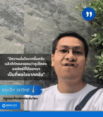 รีวิวปลูกผม FUE hair transplant Thailand Absolute hair clinic