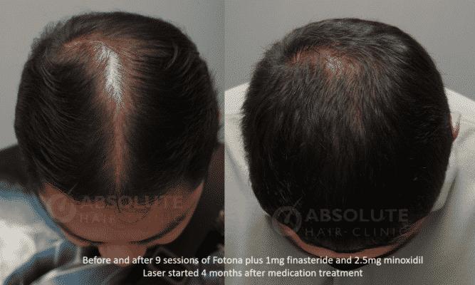 โฟโตนาเลเซอร์ ผมบางFotona laser hair loss Absolute Hair Clinic