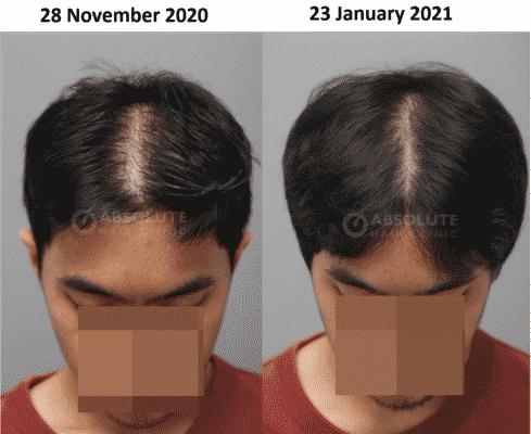 โฟโตน่าเลเซอร์ ผมบาง Fotona laser hair loss Bangkok Absolute hair clinic