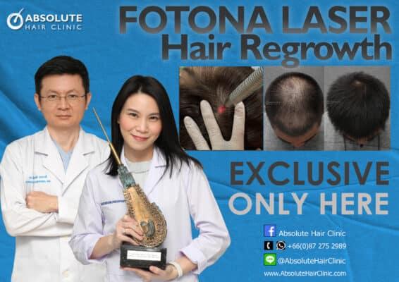 โฟโตน่าเลเซอร์ รักษาผมบาง Fotona hair regrowth Absolute hair clinic