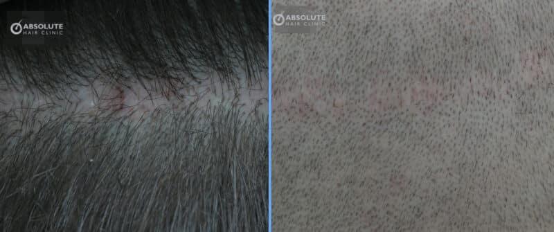 ปลูกผมแผลเป็น FUE hair transplant in scared scalp